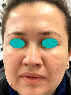 Resultado del tratamiento Bótox Facial
