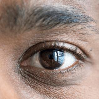 Contorno de ojo