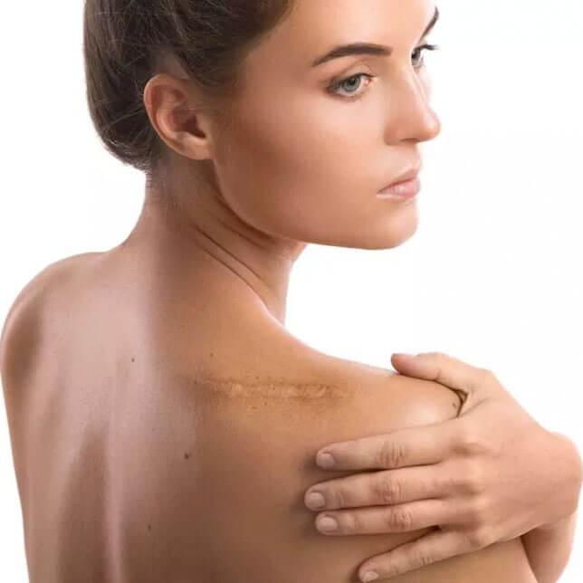 Mujer con cicatriz