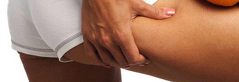 Cómo eliminar la celulitis de las piernas y glúteos rápidamente en CDMX